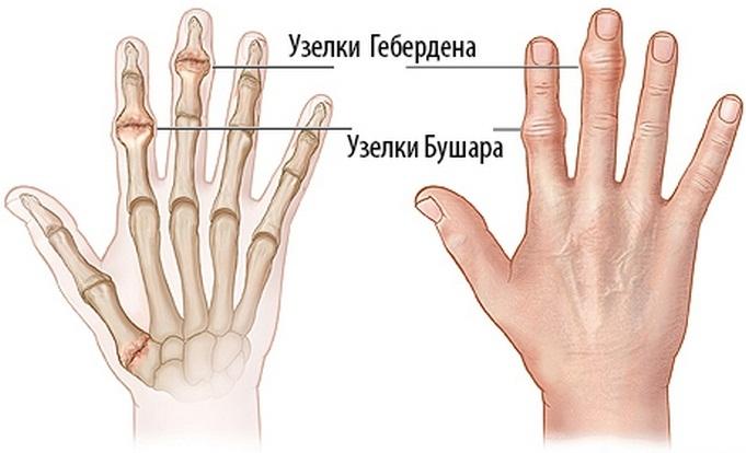 teraflex az ujjak ízületi gyulladásában