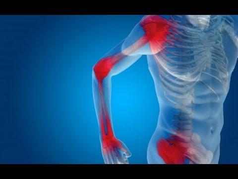 váll arthrosis kezelése