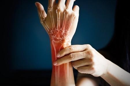 ízületi fájdalom karokkal