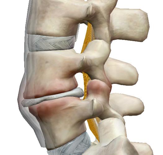 gerincvelői csontok ízületi tünetei