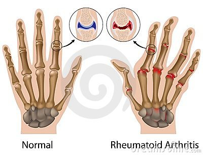 kezek ízületeinek kezelése