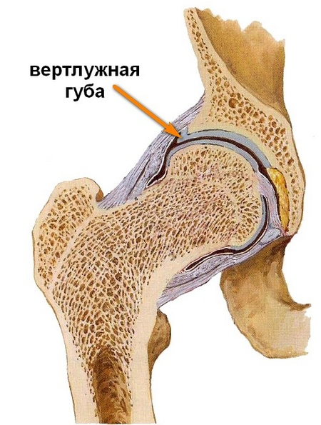 fájdalom a csípőízület közelében)