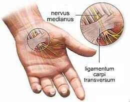 fájdalom az ujj ízületében feszítés közben)