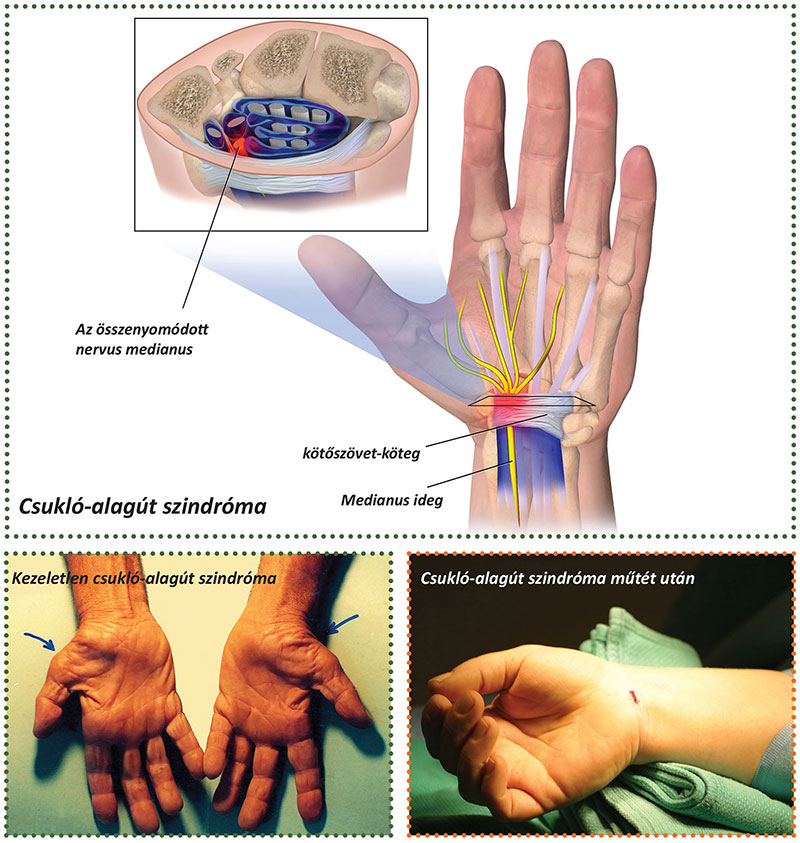 Dr. Osgyán Henrik kézsebész főorvos
