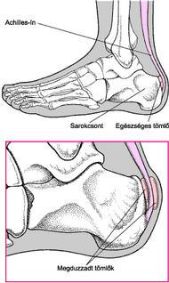 a lábak ízületeinek fájdalmainak neurológiája