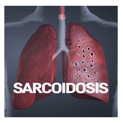 ízületi fájdalom sarcoidosis)
