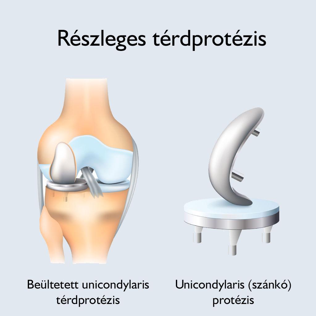 chondromic test a térdízületben hogyan kell kezelni)