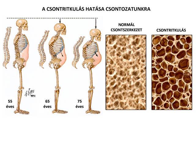 térdízületek fáj a hidegtől miért vannak nők ízületi fájdalmak