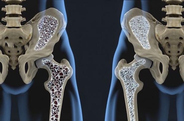 csontritkulás milyen kenőcsökkel kezelni