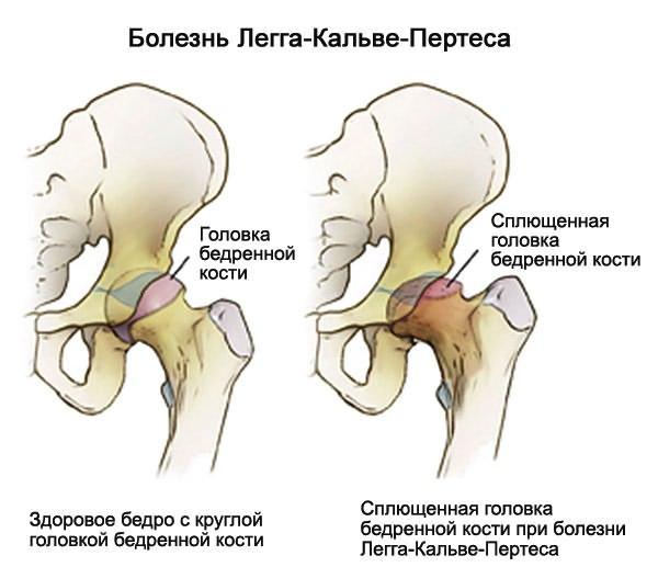 csípő coxarthrosis artrózisa)