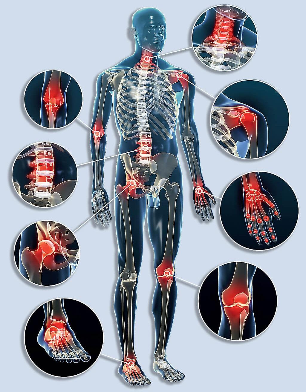 csípő izületi betegségei