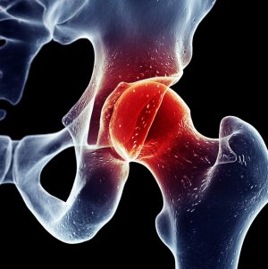 SpineArt - Csipőfájdalom Kezelése | Csipő Torna | budapest-nurnberg.hu