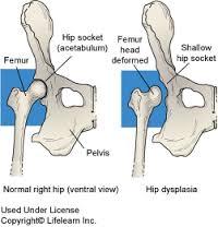 csípőízületi kezelés 3. fokozat)