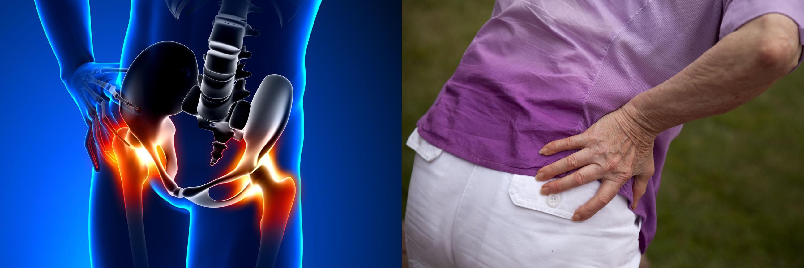 csípőízületi tünetek