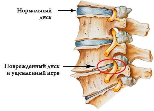 miért fáj a csípőízület egyedül)