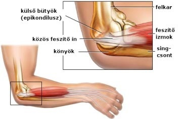 könyökfájdalom okozza az artrózis kezelését)