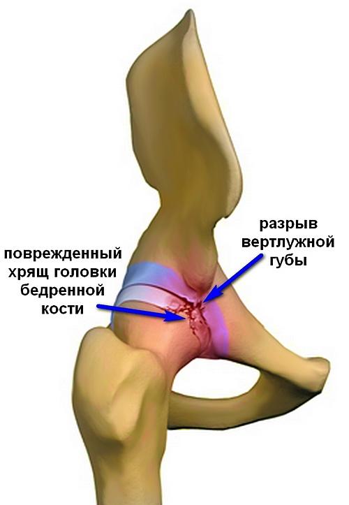a fájdalom oka a fenékben és az ízületben)