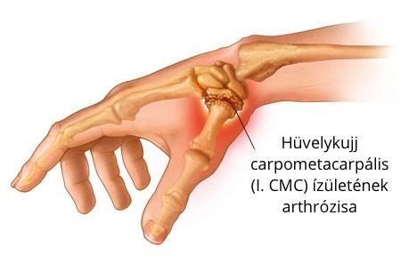 fájdalom a hüvelykujj ízületében