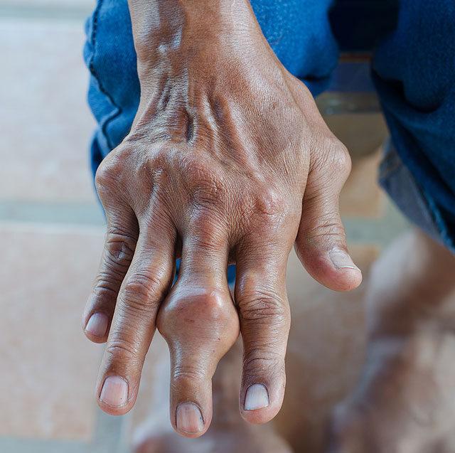 az öreg embernek ízületi fájdalma van)
