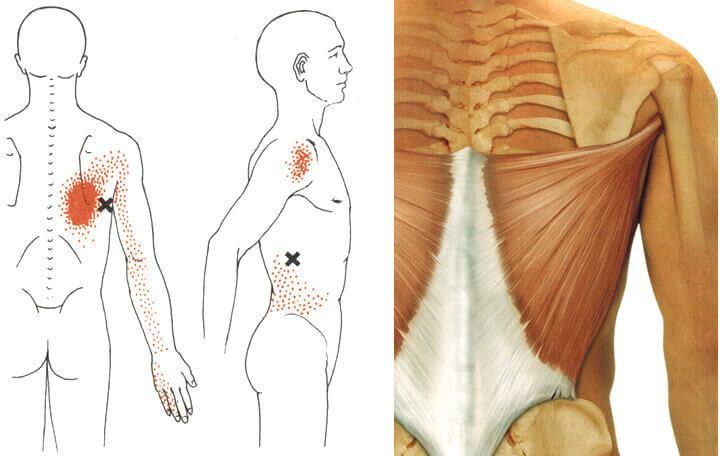 Hogyan lehet gyorsan gyógyítani a hátán lévő wen-et: a leghatékonyabb módszerek