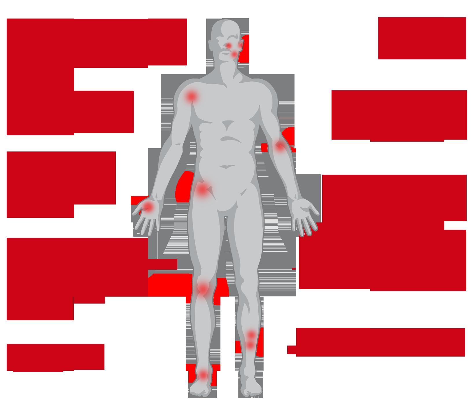 artrózis sarok túrós kezelés artrózis deformáló kezelés