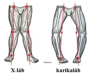 implantátumok a térd artrózisához