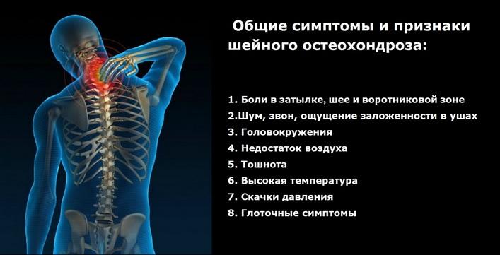A mellkasi gerinc osteokondrozisának kezelése és tünetei - Betegség