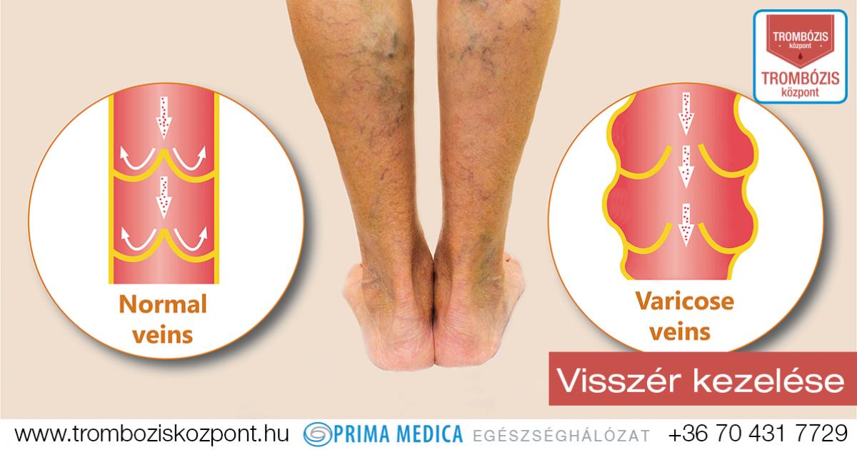 kötőszöveti gyulladás az alsó lábban ujjízület fájdalom, mit kell tenni