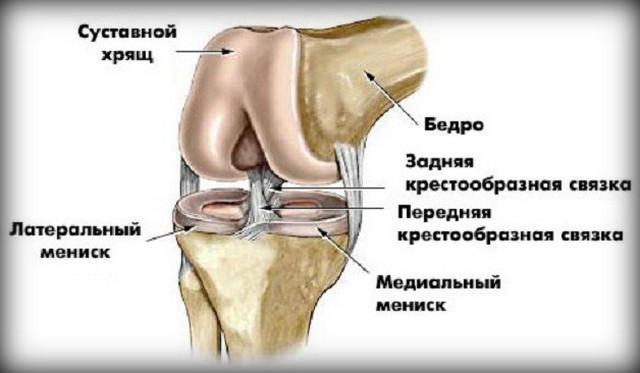 a térdízület 2. fokú deformált artrózisa