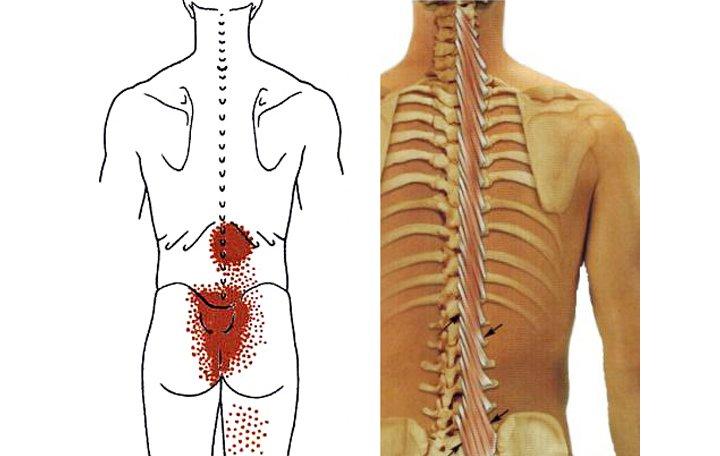 izom csontrendszer és kötőszövet betegségei