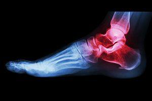laza kötőszövet film előkészítése az ujjak és a lábujjak ízületei