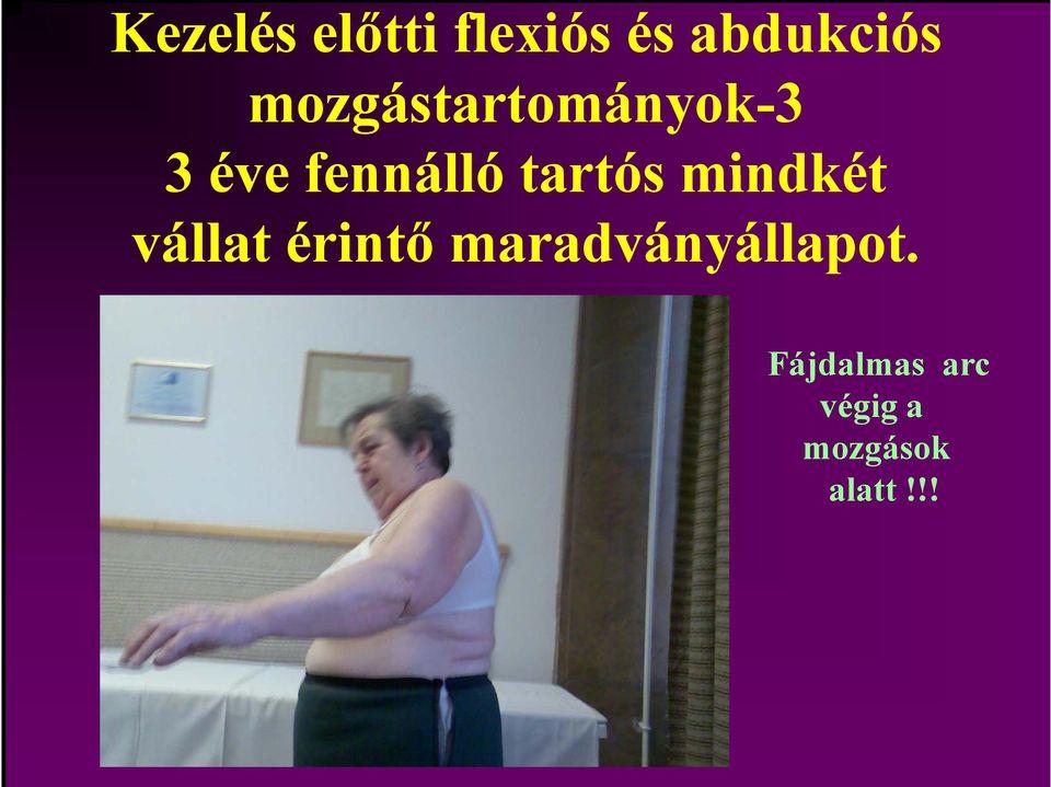 a vállízület humeroscapularis periarthritise és kezelése)