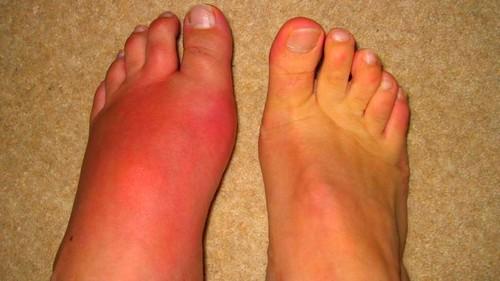 mit duzzad a láb ízületei nyaki fájdalmak esetén
