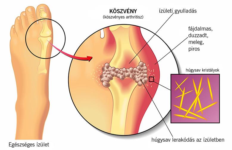 ízületi gyulladás a nagy lábujj tünetei)