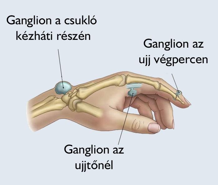 a csuklóízület fáj és összeroppant)