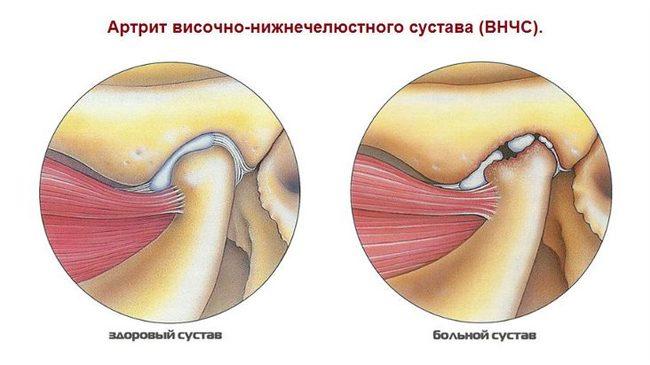 az ízületek fájnak a femoston bevétele után