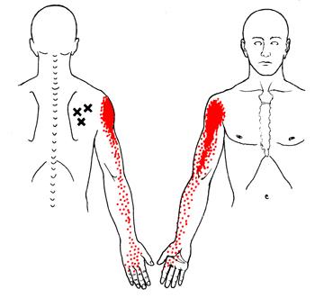 kezdő fájdalom, amikor a csípőízületben sétál csípőízület szubchondrális szklerózisa