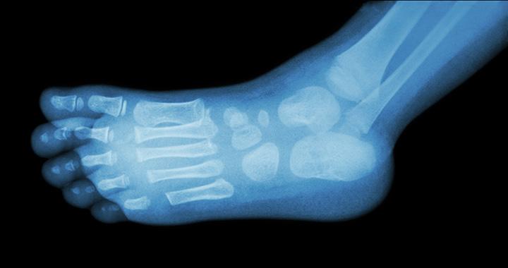 ízületi fájdalom fáj a lábát)