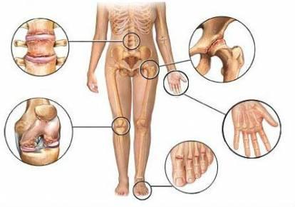 másodlagos gonarthrosis a térdízület kezelése 2 fokkal a bal kéz ízülete fáj