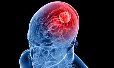 A fejfájás