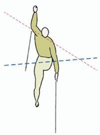 a csípőízületek kezdő artrózisa
