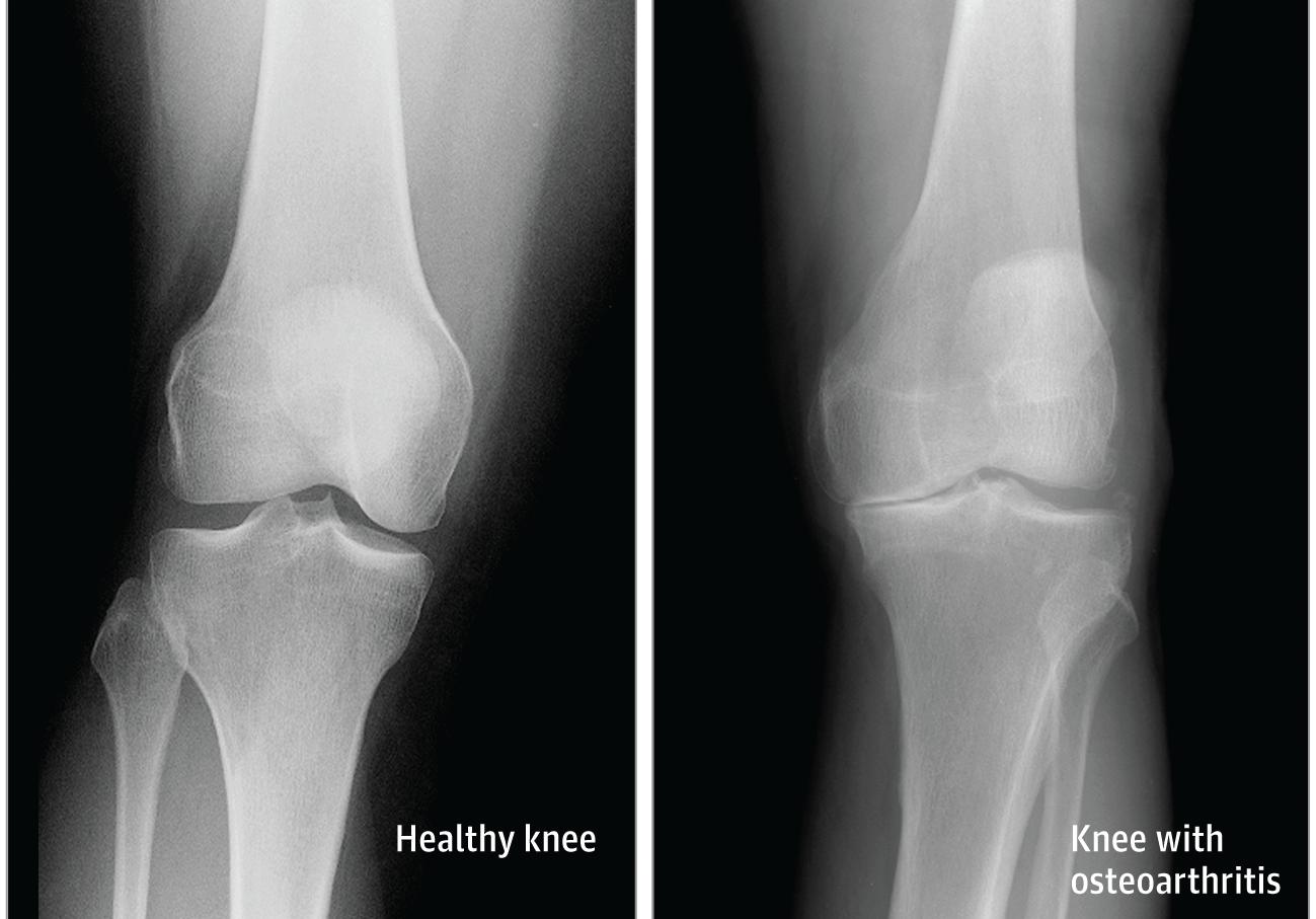 hogyan fejlődik a boka osteoarthritis)