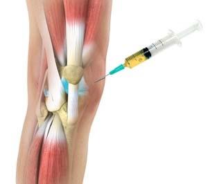 a térdízület kezelésének kezdő artrózisa)