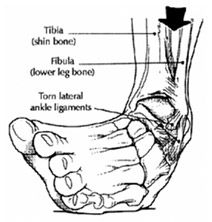 csuklóízületi sprain kezelés