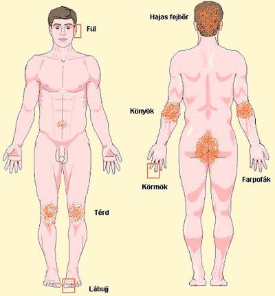 kenőcskezelés térd artrózisához