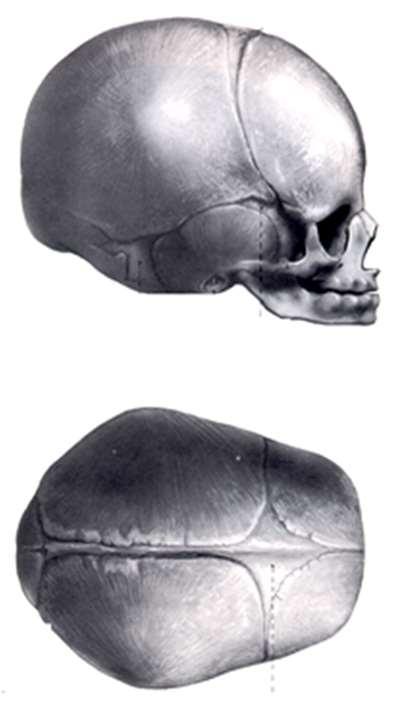 fáj a szegycsont clavicularis ízülete a térd deformáló artrózisának mértéke
