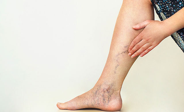 fájdalom a térdízületben és az alsó lábban