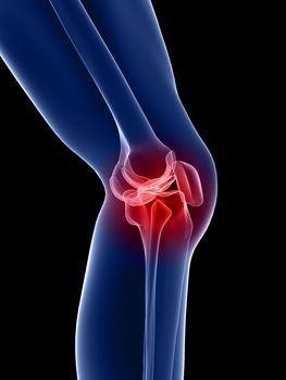 hosszabbító fájdalom a bal térdben fájdalom lesz az ízületek tisztításakor