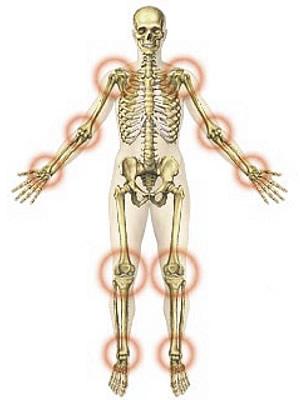 Kar fájdalom Elzáródás a csípőízület artrózisában