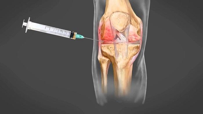gyógyszer térd artrózisához